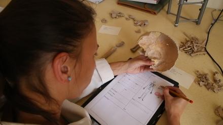 Ennek a gyermekkoponyának hiányzik az arci része, a csontváz is hiányos.